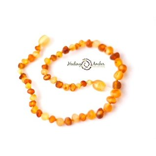 Healing Amber Baltic Amber Necklace - Baby