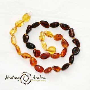 Healing Amber Baltic Amber Necklace - Teen & Adult 20