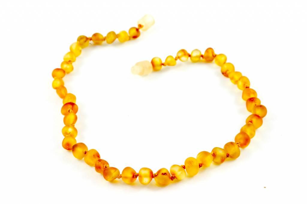 "Healing Hazel Baltic Amber 11"" Teething Necklace - Raw Honey"
