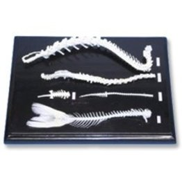 Spinal Skeleton Comparison