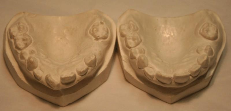 180407 JTM Life casting – Dental casts Workshop April 7 11am-2pm