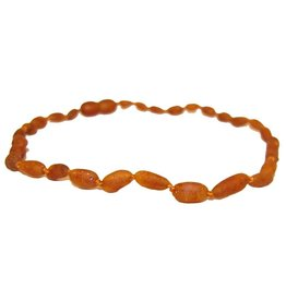 Amber Monkey Baltic Amber 10-11 inch Necklace - Raw Cognac Bean POP