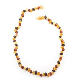 "Healing Hazel Healing Hazel 12-13"" Balticamber Child Necklace"
