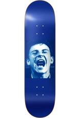 "Lovesick Skateboards Big Mouth Strikes Again 8.38"""