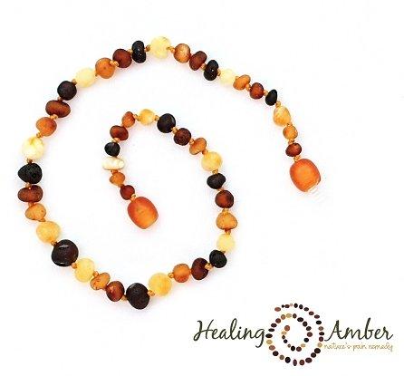 Healing Amber Raw Multi ~ Circle ~ 15 inches