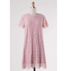 Scalloped Hem Lace Dress