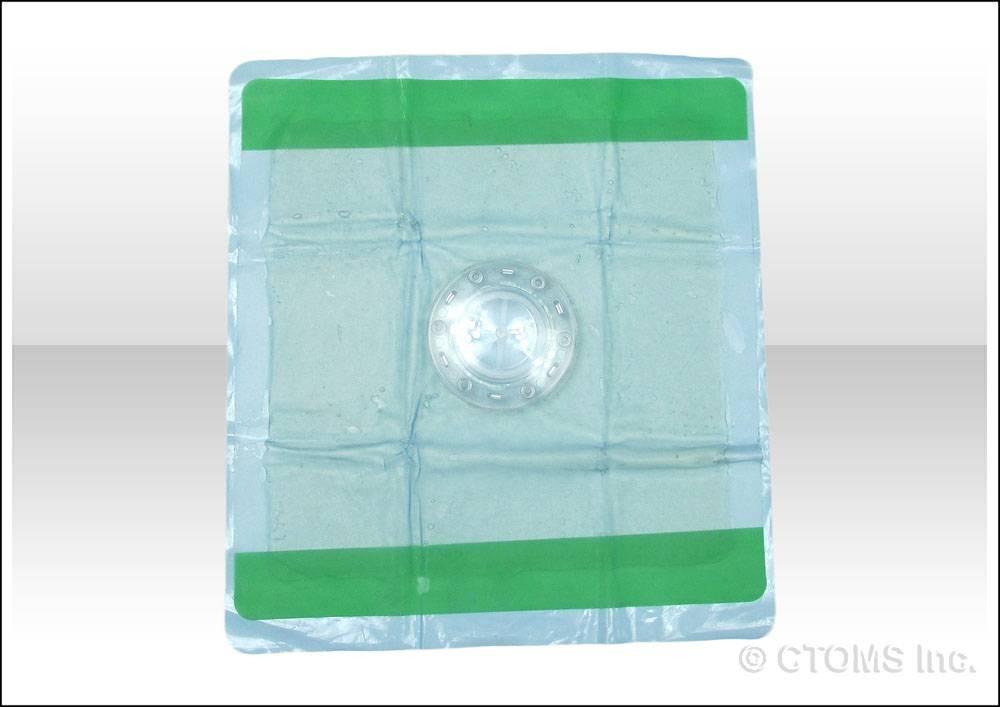 FastTrack Medical Solutions FastBreathe Thoracic Seal (FTS)