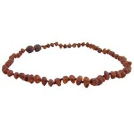 "The Amber Monkey Baltic Amber Necklace (12-22"")"