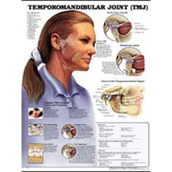 Laminated TMJ Syndrome Chart